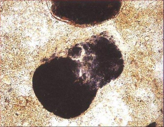 Что такое йодофильная флора в кале у ребенка и взрослого!