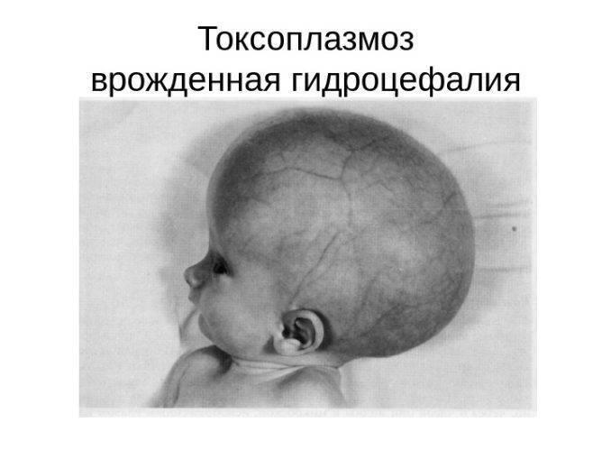 Гидроцефалия на узи плода: ???? популярные вопросы про беременность и ответы на них