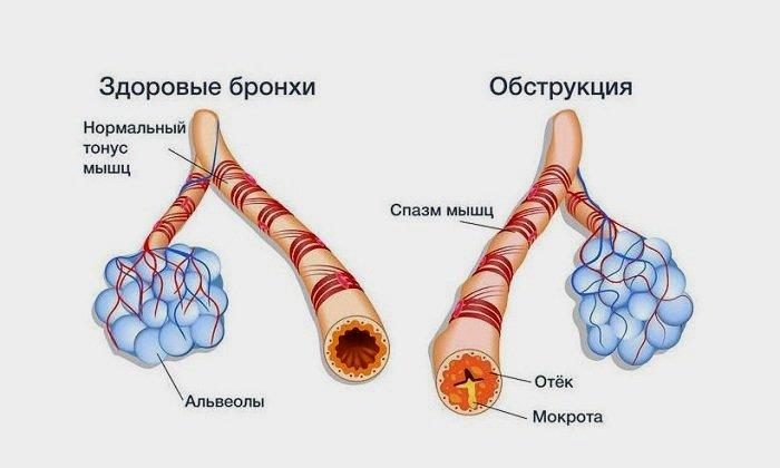 Острый трахеобронхит: симптомы, лечение, профилактика