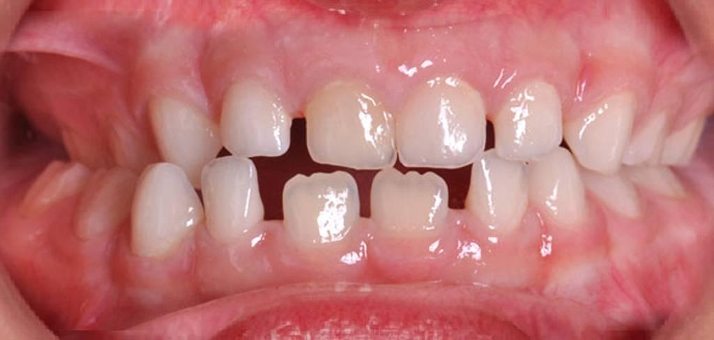 Кривые зубы у детей и взрослых: причины, методы исправления. можно ли исправить дефект без брекетов