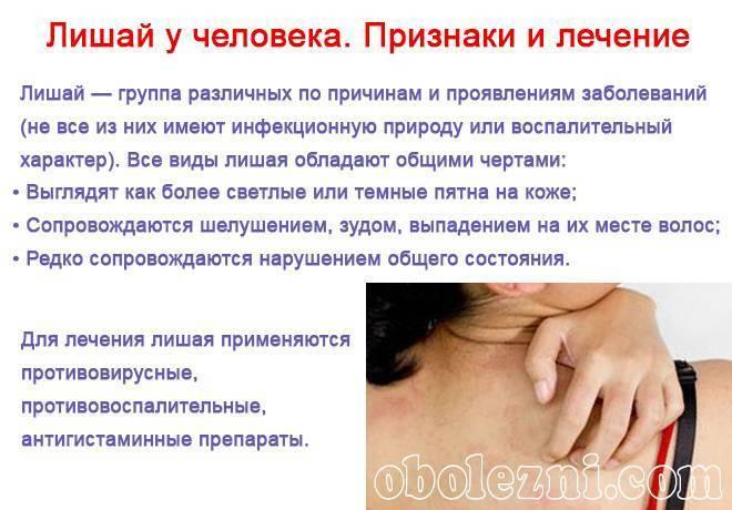 Белый лишай у человека: симптомы, лечение, фото (6 штук) с описанием причин