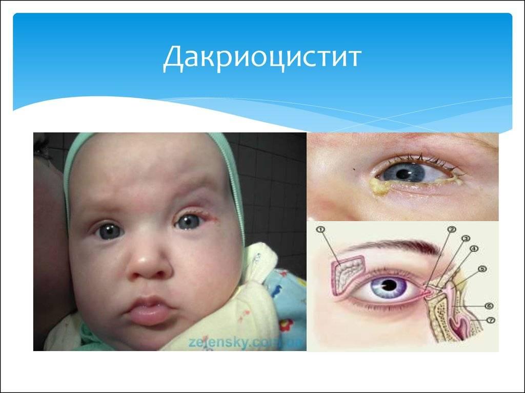 Закупорка слезного канала у новорожденных: фото, симптомы непроходимости, лечение лазером, народными средствами, операция. как делать массаж в домашних условиях, когда проходит