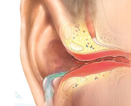 Тубоотит у ребенка (в т.ч. двусторонний): что это, лечение и симптомы