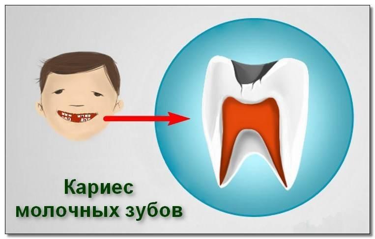 Методы лечения кариеса у детей: причины, особенности, как лечить молочные и коренные зубы у ребенка?