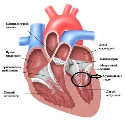 Дополнительная хорда левого желудочка (в сердце у ребенка)