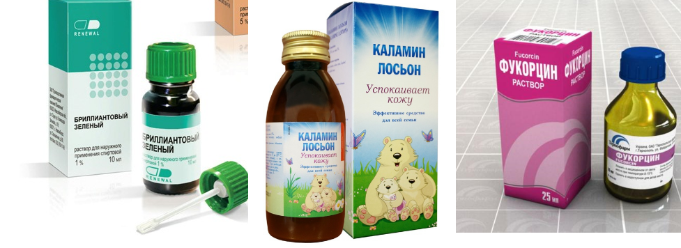 Чем мазать ветрянку у детей кроме зеленки: советы доктора комаровского, чем и сколько лечить ребенка от болезни, обзор мазей и отзывы