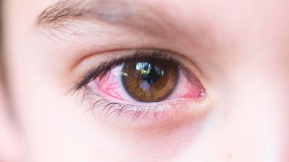 Симптомы и лечение вирусного конъюнктивита глаз у детей