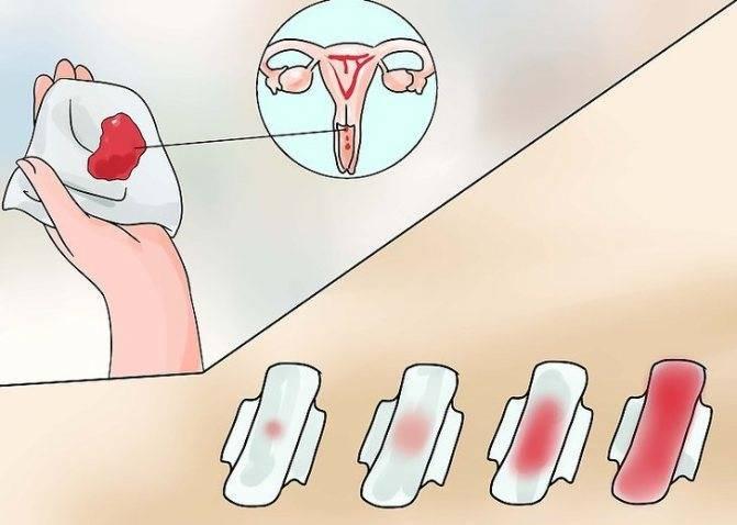 Как остановить маточное кровотечение: в домашних условиях и у врача