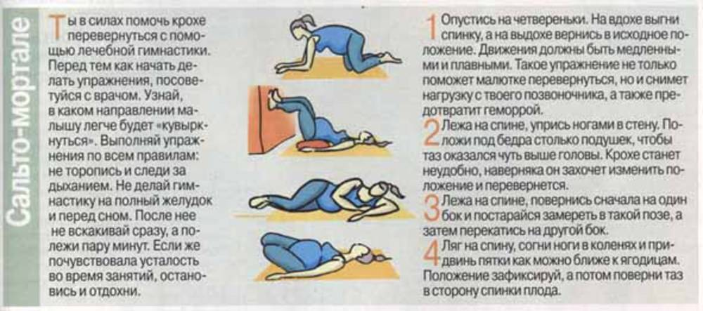 Упражнения, чтобы ребенок перевернулся головой вниз при тазовом предлежании перед родами
