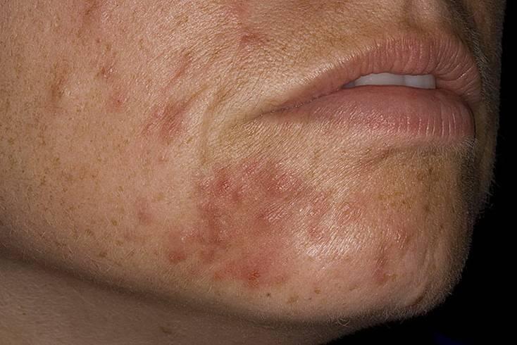 Способы лечения периорального дерматита на лице у взрослых и детей