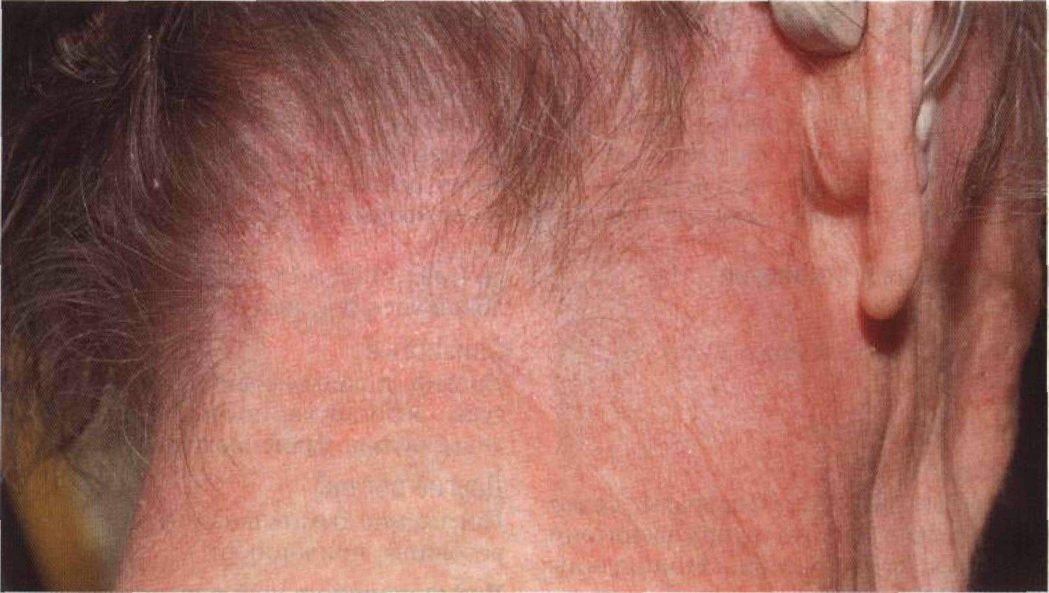 Появление сыпи на шее у малыша