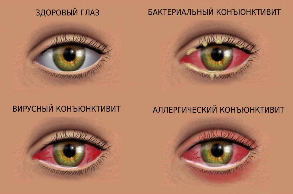 Бактериальный конъюнктивит глаз: лечение у детей