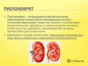 Какие симптомы воспаления почек у ребенка и как его лечить
