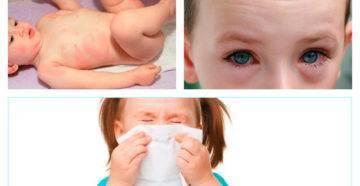 Аллергия на собак у ребенка: симпотмы и лечение