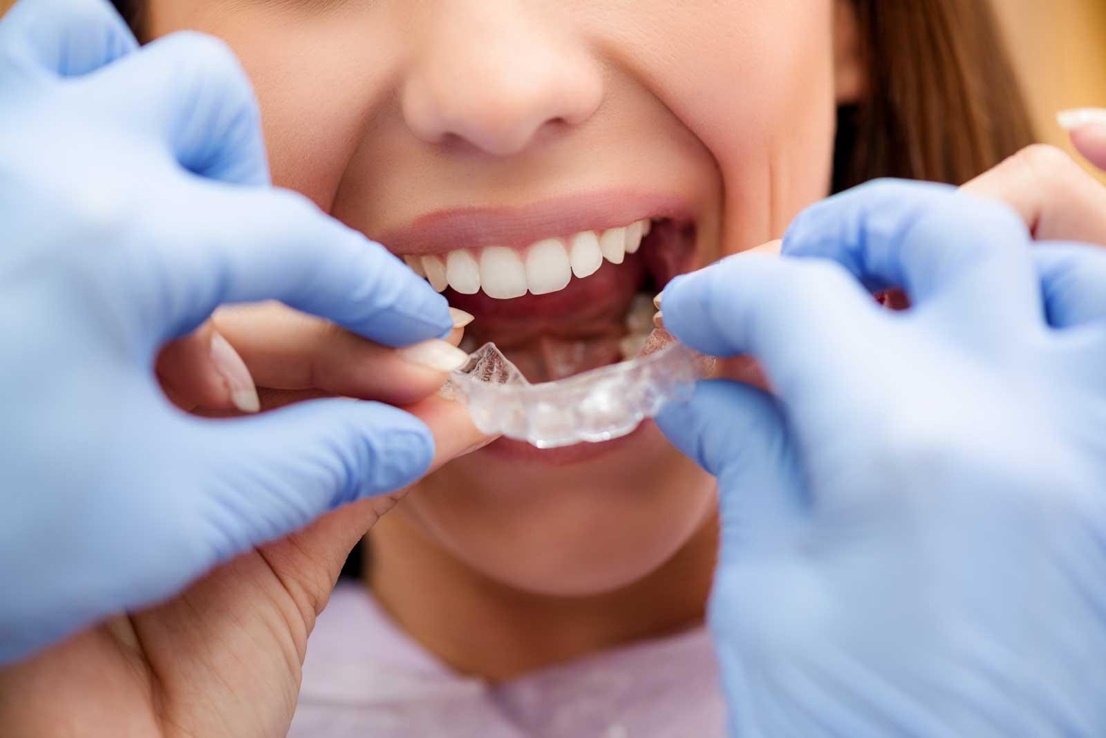 Выравнивание зубов хирургическим методом
