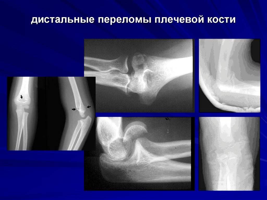 Закрытый чрезмыщелковый перелом правого плеча