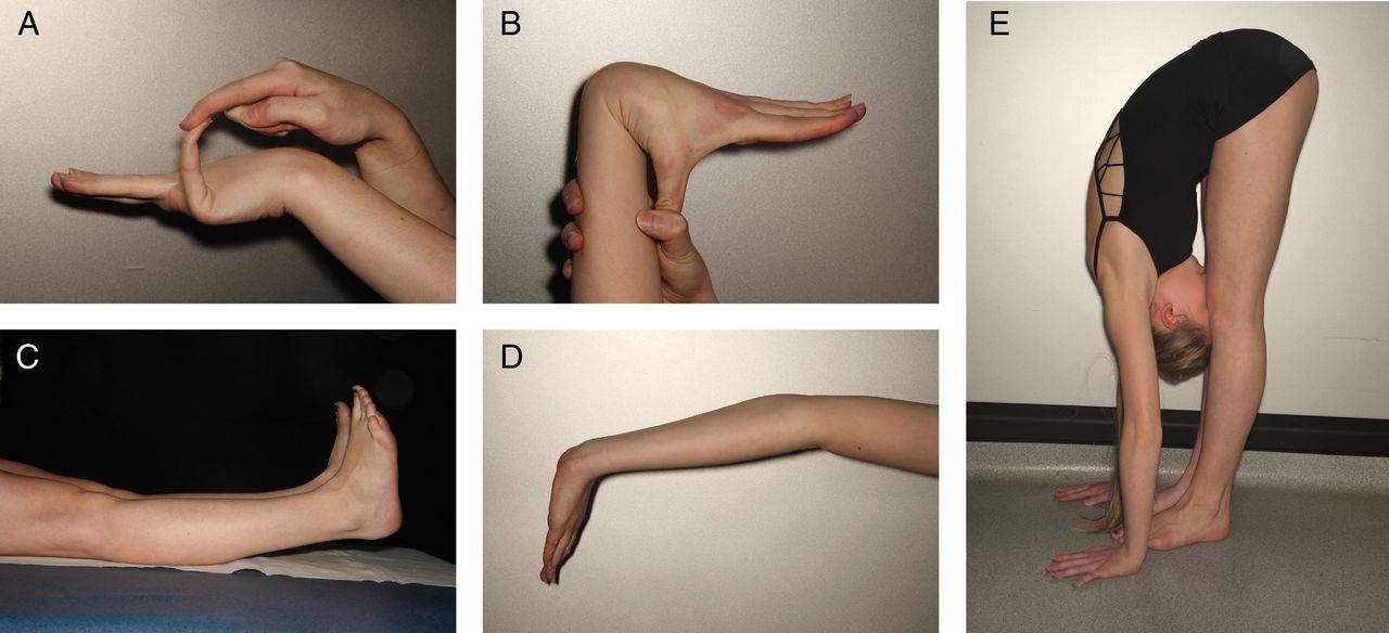 Дисплазия соединительной ткани у детей ?: симптомы синдрома с фото и лечение патологии