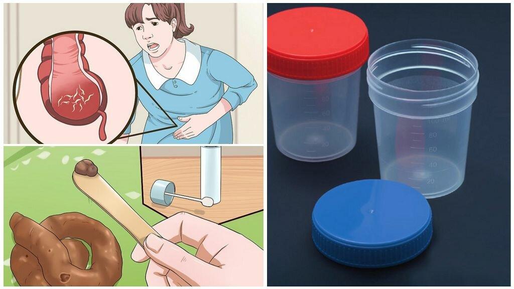 Анализы на глисты у детей: исследование крови, кала и другие методы выявления гельминтов