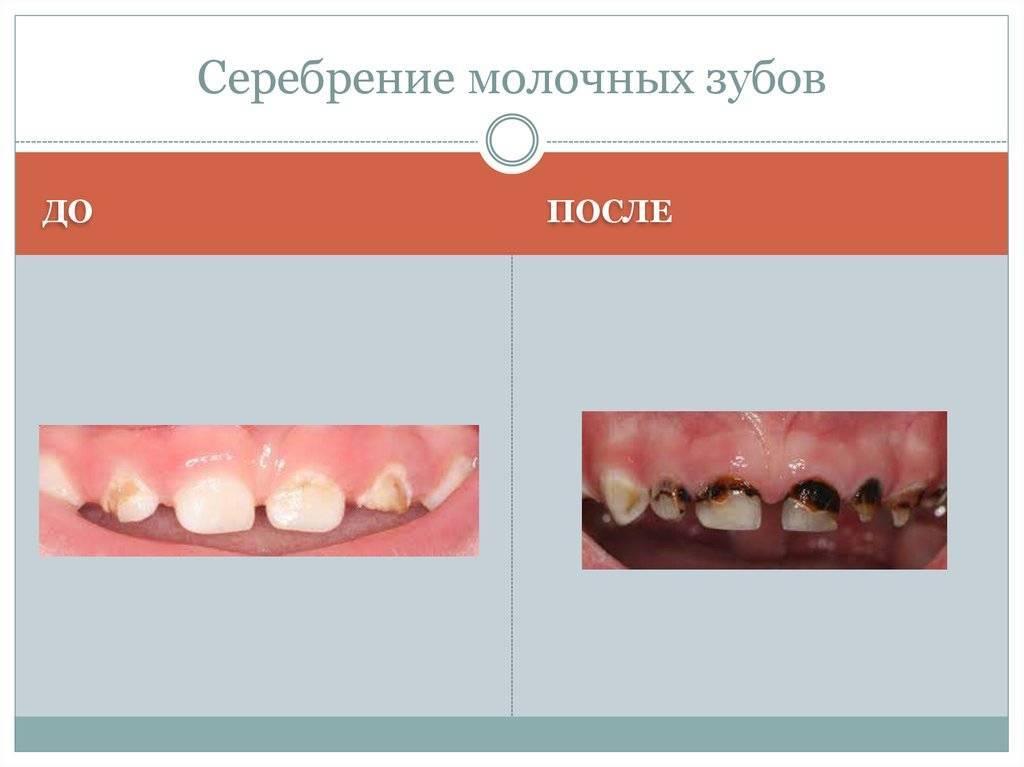 Серебрение зубов у детей - фото до и после, фторирование как альтернатива