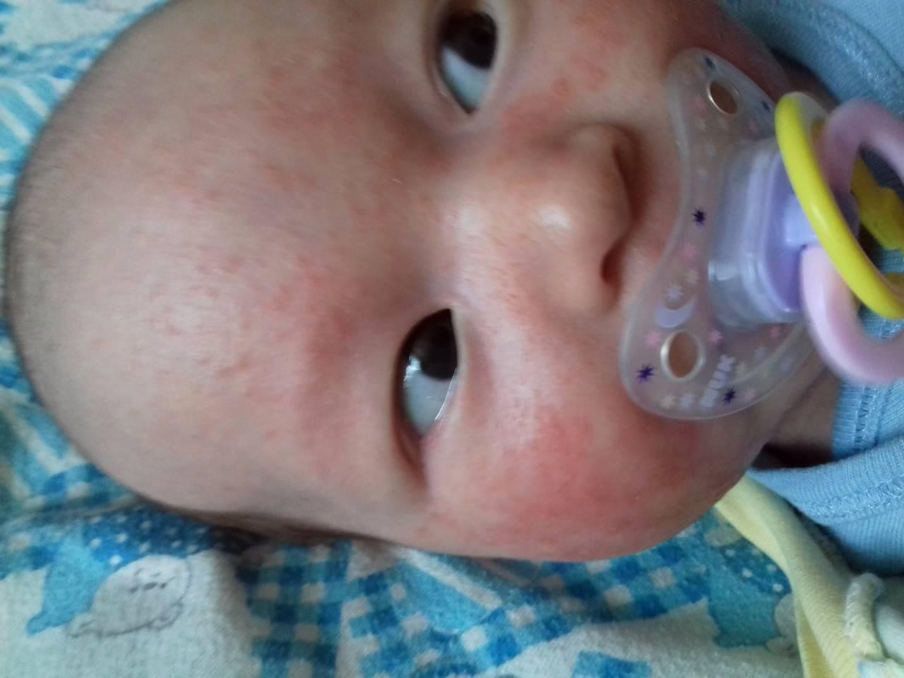 Сыпь на лице у новорожденного: почему появляются прыщики и как их лечить