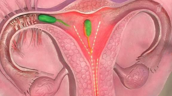 Как протекает беременность при двурогой матке