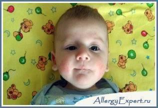Как выглядит и чем лечить аллергию на сладкое у ребенка