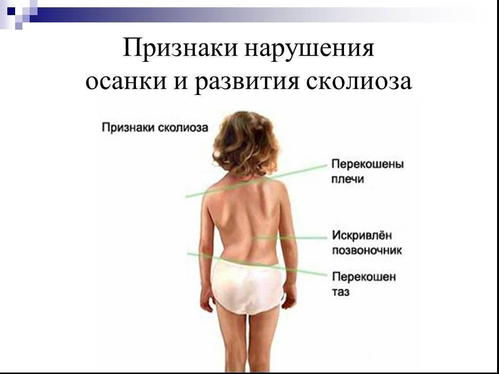 Нарушение осанки у детей и подростков: искривление позвоночника, профилактика нарушений и формирование прямой спины