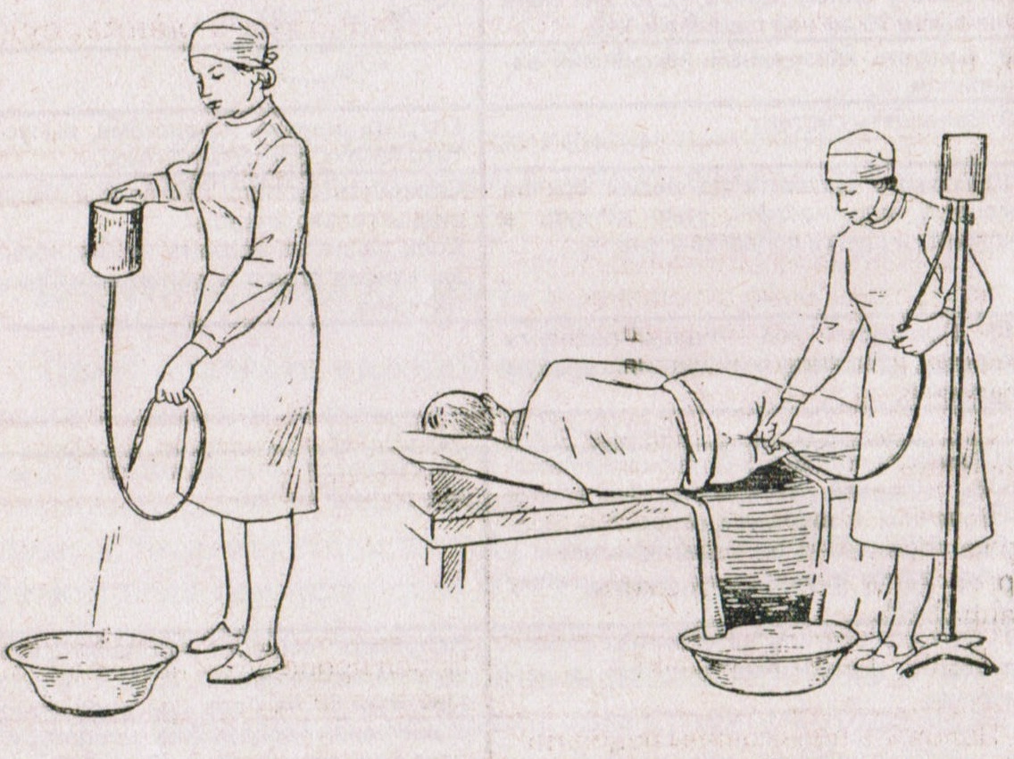 Нужна ли клизма грудничку при запоре и как правильно ее поставить?