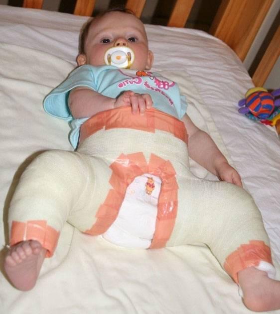 Дисплазия тазобедренных суставов у новорожденных: лечение до года, фото, гимнастика