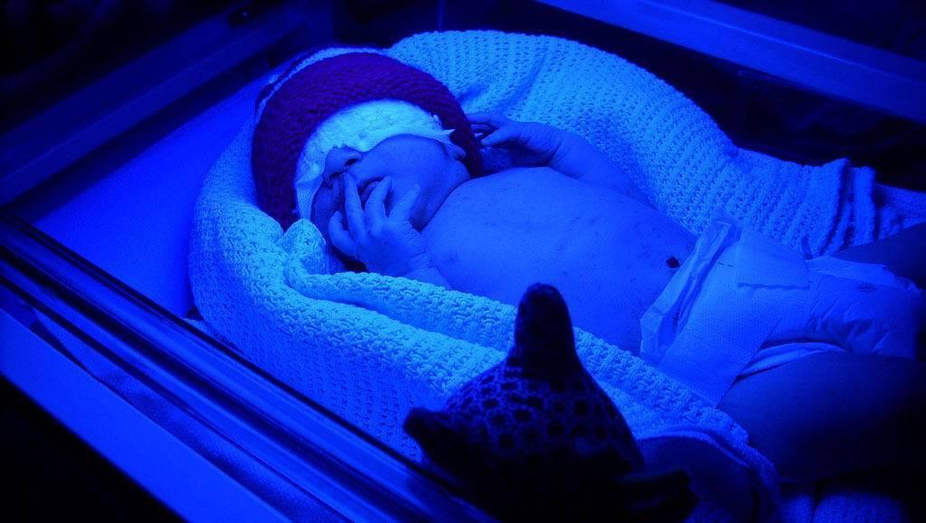 Методы лечения «желтушки» у новорожденных