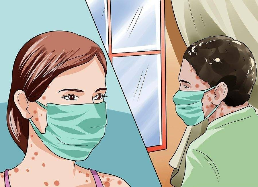 Профилактика ветрянки при контакте с больным