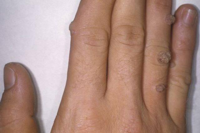Бородавки у детей на руках: причины появления, лечение препаратами и способы удаления вирусной папилломы