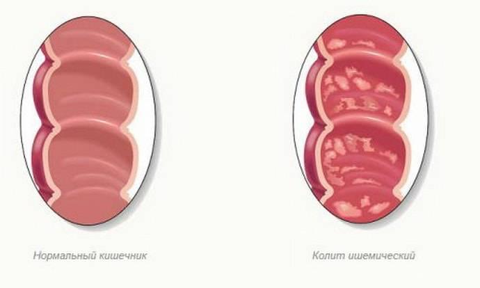 Колит у детей: симптомы и лечение патологии кишечника у новорожденных и до 7 лет