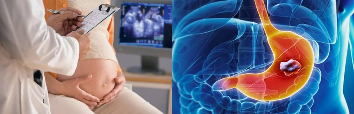 Холецистит при беременности: симптомы и лечение