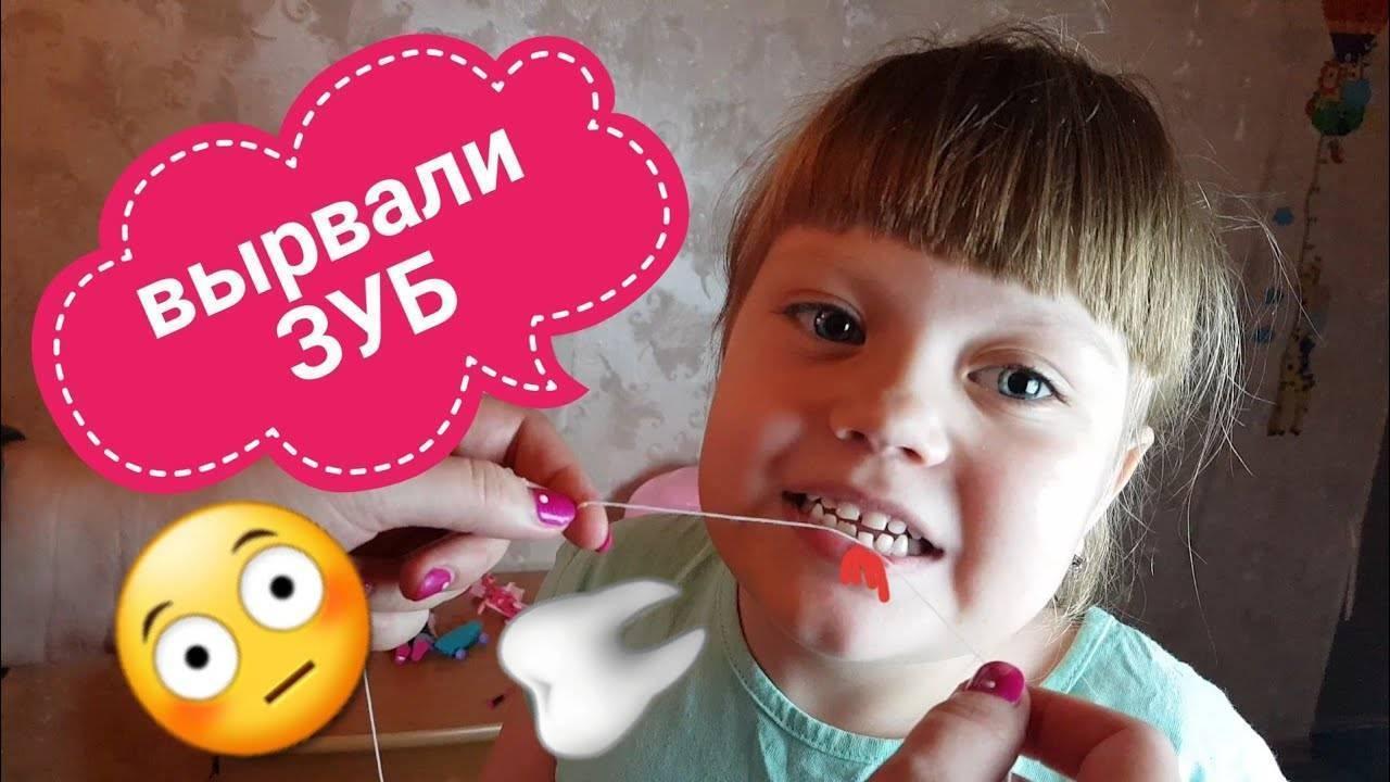 Как вырвать молочный зуб: правильно в домашних условиях