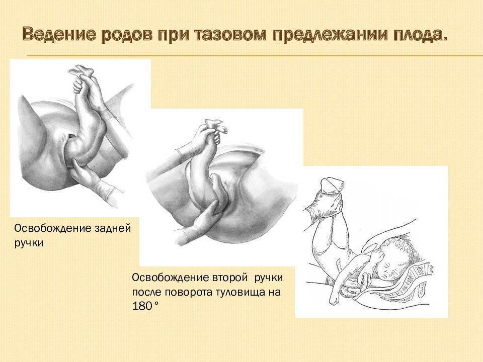До какой недели беременности малыш может переворачиваться и когда малыш должен перевернуться перед родами