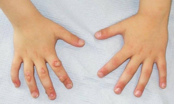 Бородавки у детей - лечение, удаление на руках, на ногах, на лице