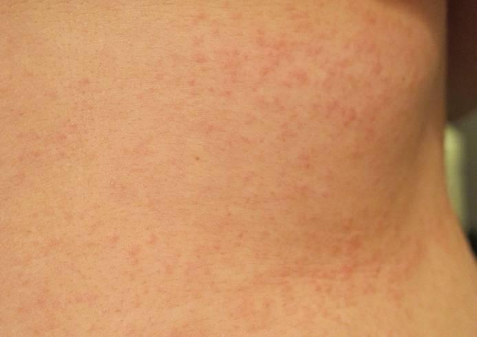 Крапивница у взрослых: лечение, 8 фото с описанием, причины и симптомы