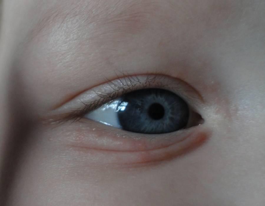 Сыпь под глазами у взрослых