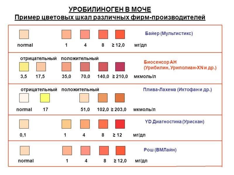 Общий анализ мочи у детей. расшифровка показатели норма