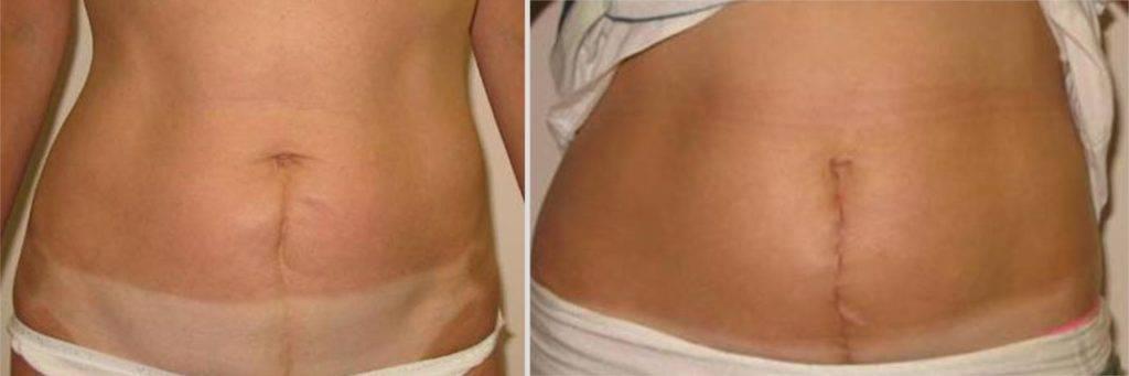 Кесарево сечение: восстановление после операции. живот и шов после кесарева сечения