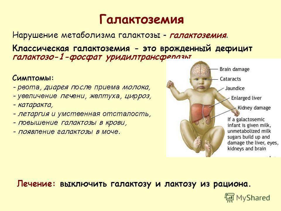 Целиакия у грудничков и детей старшего возраста: симптомы, диагностика и лечение - мед-справка