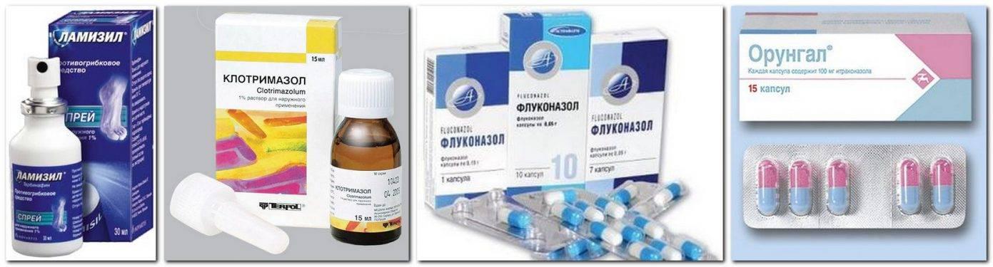 Симптомы грибковой ангины у детей и лечение инфекции противогрибковыми препаратами