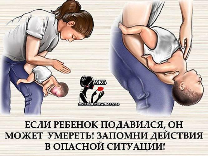 Первая помощь ребенку, который подавился или поперхнулся | mamaplus