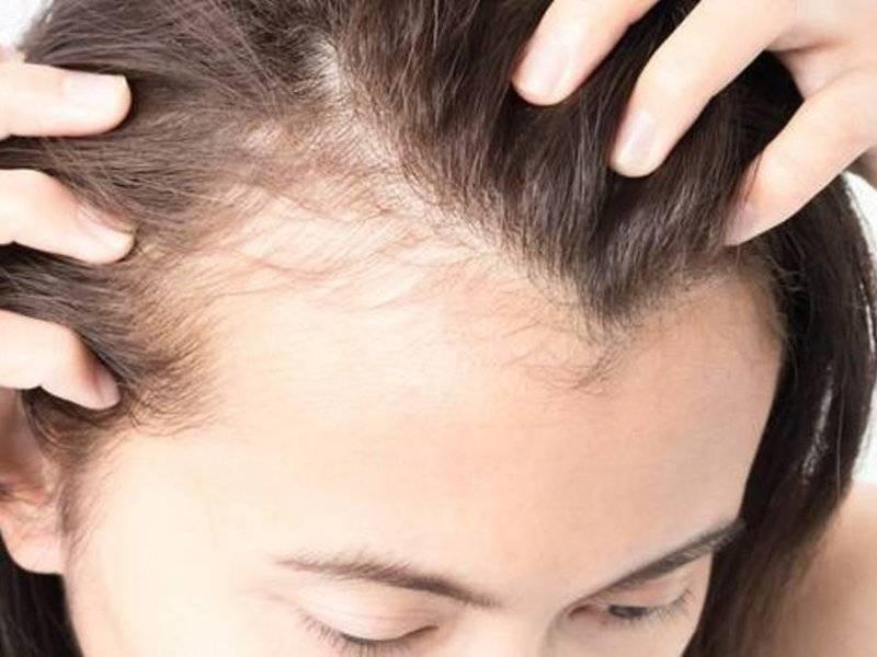 Причины выпадения волос у детей в разном возрасте