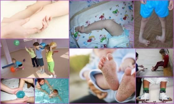 Массаж при косолапости у детей: как делать, лечение в домашних условиях