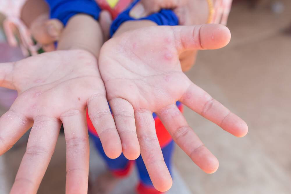 Инфекция «рука-нога-рот» у ребенка: симптомы и лечение энтеровирусного везикулярного стоматита с фото. энтеровирусный стоматит – неприятная болезнь вирусный везикулярный стоматит