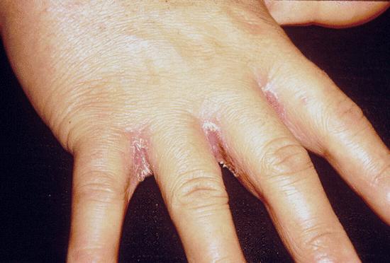 Микоз гладкой кожи: лечение заболевания, а также фото недуга, какие симптомы у этой болезни и какой код по мкб 10