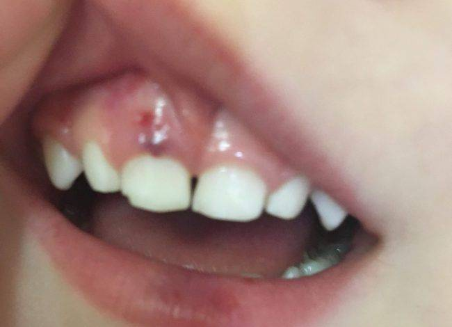 Гематома на десне у ребенка при прорезывании
