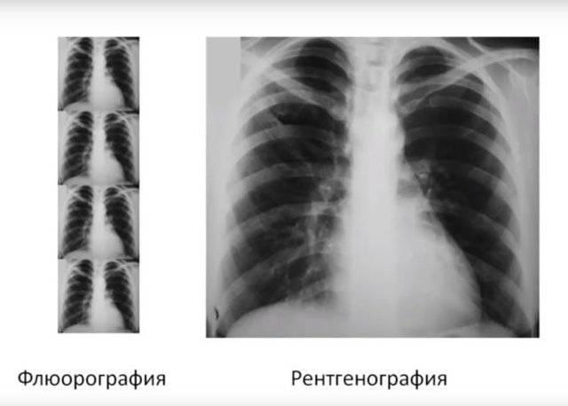 Можно ли делать рентген мамам при грудном вскармливании и грудничкам